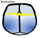 Brachicefalia