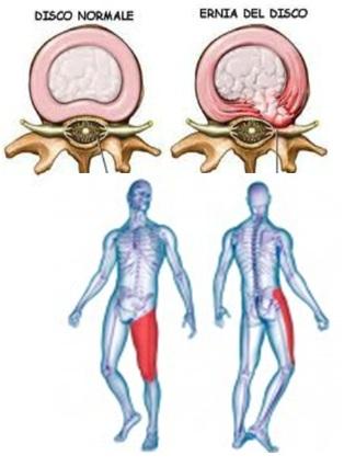 Chondrosis di un dorso ed eliminazione di dolore