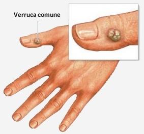 Papilloma virus verruche piedi. Ce sunt verucile?