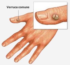 Che trattare mycosis di unghie al bambino